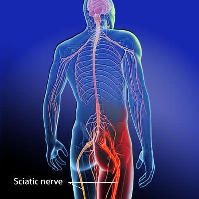 Sciatica Lee's Summit Physical Therapy