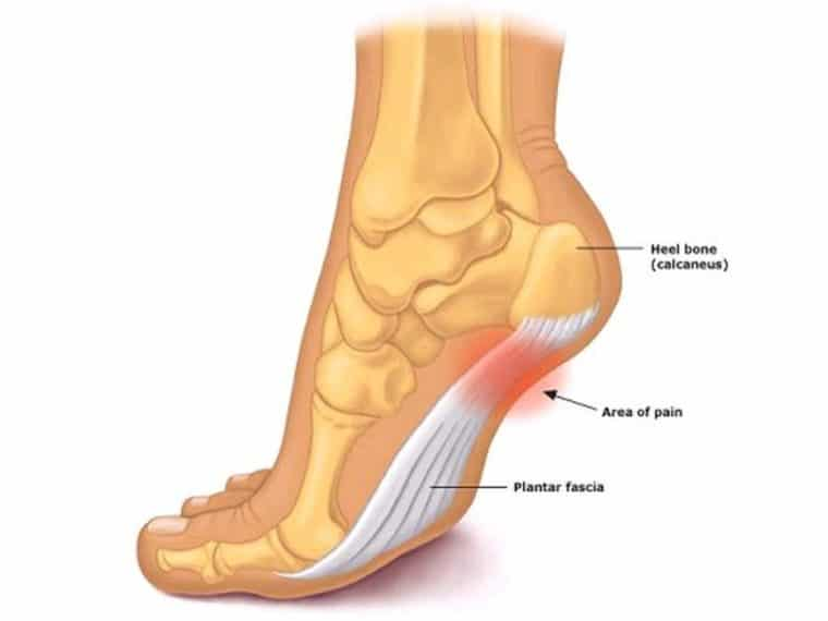 Lee's Summit Physical Therapy Plantar Fasciitis Relief 2